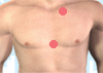 acupuncture points mann front